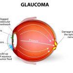 9710-glaucoma