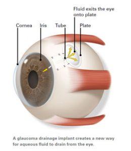 glaucoma_02