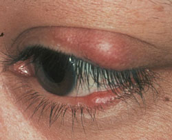 Chalazia, blocked meibomian glands, in both the upper and lower eyelids