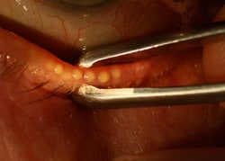 Expressing the meibomian glands with cilia forceps – this patient has thick buttery secretions