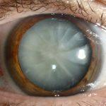 cataract-drops