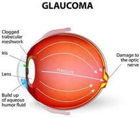 Glaucoma and its treatment