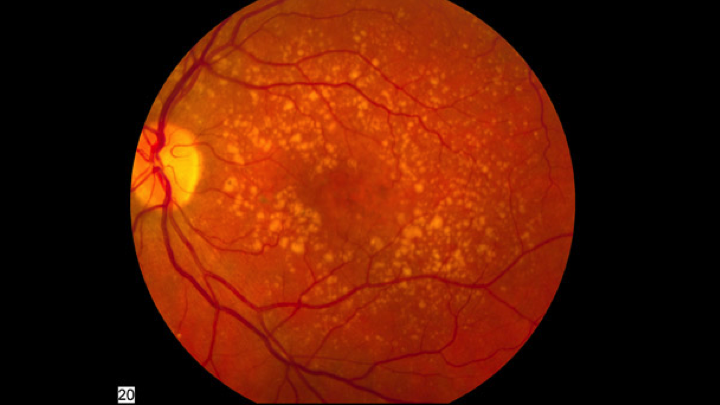 Modifiable Cardiovascular Risk Factors and Age-related Macular Degeneration