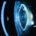 Lamellar or Zonular Cataract