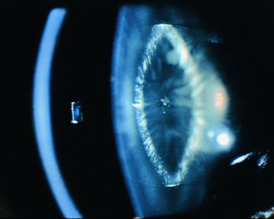 Cataract Pictures and ...