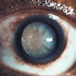 Mature-Cataract-2