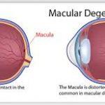 macular_